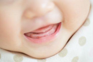 子供の地図状舌の原因と治療法